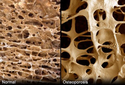 porównanie kości osteoporoza