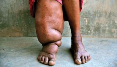 Czym jest słoniowacizna Przyczyny objawy leczenie